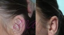 1534502928_plastična hirurgija operacije ušiju galerija 14