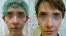 1534502929_plastična hirurgija operacije ušiju galerija 15