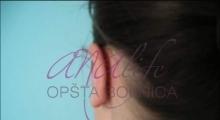 1534502930_plastična hirurgija operacije ušiju galerija 17
