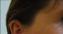 1534502931_plastična hirurgija operacije ušiju galerija 18