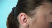 1534502932_plastična hirurgija operacije ušiju galerija 20