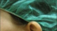 1534502933_plastična hirurgija operacije ušiju galerija 21
