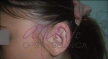 1534502933_plastična hirurgija operacije ušiju galerija 22