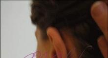 1534502935_plastična hirurgija operacije ušiju galerija 24
