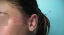 1534502935_plastična hirurgija operacije ušiju galerija 25