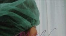 1534502936_plastična hirurgija operacije ušiju galerija 26