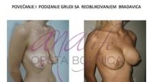 1535016215_plastična hirurgija podizanje grudi galerija