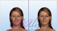 1535016216_plastična hirurgija podizanje grudi galerija 3