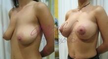 1535016221_plastična hirurgija podizanje grudi galerija 16
