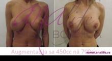 1535106710_plastična hirurgija povećavanje grudi galerija 2