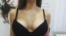 1535106716_plastična hirurgija povećavanje grudi galerija 15