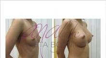 1535106718_plastična hirurgija povećavanje grudi galerija 20