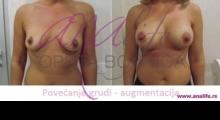 1535106719_plastična hirurgija povećavanje grudi galerija 21