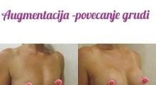 1535106825_plastična hirurgija povećavanje grudi galerija 29