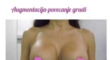 1535357882_plastična hirurgija povećavanje grudi galerija 40
