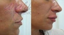 1535792352_plastična hirurgija povećanje i smanjenje usana galerija 2
