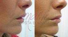1535792352_plastična hirurgija povećanje i smanjenje usana galerija 3