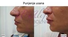 1535792352_plastična hirurgija povećanje i smanjenje usana galerija 4