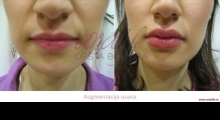 1535792353_plastična hirurgija povećanje i smanjenje usana galerija 8