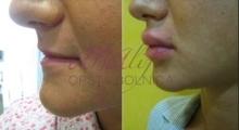 1535792354_plastična hirurgija povećanje i smanjenje usana galerija 10