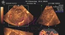 1536142803_ginekologija 3D ultrazvuk male karlice galerija 2