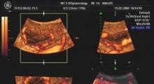 1536142804_ginekologija 3D ultrazvuk male karlice galerija 5