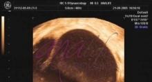 1536142807_ginekologija 3D ultrazvuk male karlice galerija 10