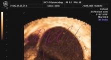 1536142807_ginekologija 3D ultrazvuk male karlice galerija 11