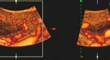 1536142808_ginekologija 3D ultrazvuk male karlice galerija 12