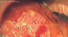 1536143589_ginekologija biopsija grlića materica galerija 2