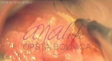 1536143590_ginekologija biopsija grlića materica galerija 3