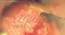 1536143590_ginekologija biopsija grlića materica galerija 4