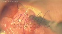1536143591_ginekologija biopsija grlića materica galerija 5
