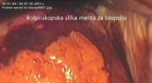 1536143591_ginekologija biopsija grlića materica galerija 6