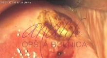 1536143591_ginekologija biopsija grlića materica galerija 7