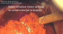 1536143592_ginekologija biopsija grlića materica galerija 10