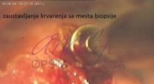 1536143593_ginekologija biopsija grlića materica galerija 11