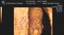 1537262667_trudnoća 4D 3D ultrazvučni pregled do 9 nedelje trudnoće galerija 4