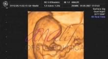 1537263178_trudnoća pregled u 10 nedelji trudnoće galerija 3