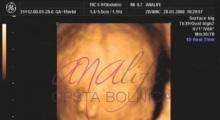 1537266084_trudnoca ekspertski 4D ultrazvuk od 14 19 nedelje trudnoce galerija 7