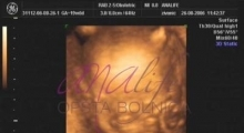 1537266086_trudnoca ekspertski 4D ultrazvuk od 14 19 nedelje trudnoce galerija 11