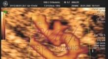 1537266086_trudnoca ekspertski 4D ultrazvuk od 14 19 nedelje trudnoce galerija 9