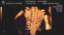 1537266087_trudnoca ekspertski 4D ultrazvuk od 14 19 nedelje trudnoce galerija 12