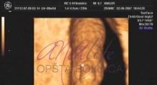 1537347721_trudnoća anomalije u trudnoći galerija 2