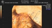 1537347724_trudnoća anomalije u trudnoći galerija 8