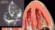 1537953757_interna dijagnostika ehokardiografija galerija