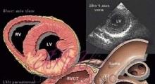 1537953759_interna dijagnostika ehokardiografija galerija 3
