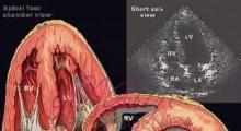 1537953760_interna dijagnostika ehokardiografija galerija 4