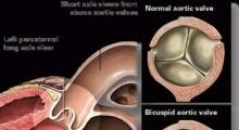 1537953761_interna dijagnostika ehokardiografija galerija 6