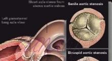 1537953764_interna dijagnostika ehokardiografija galerija 10